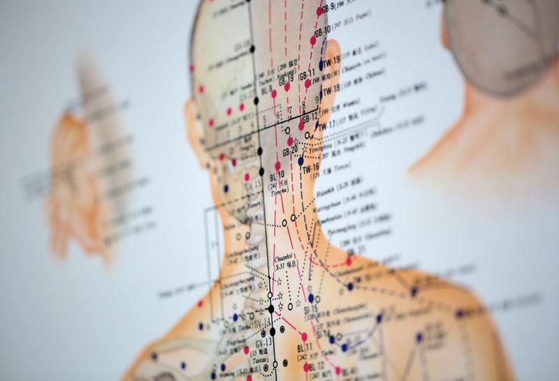 medsyn-allgemeinmedizin-akupunktur-1