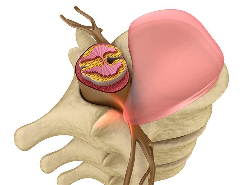 Querschnitt der Wirbelsäule (künstlerische Darstellung) mit Bandscheibe und Knochenelement. Hier sehen sie Ansatzpunkte die Schmerz verursachen können