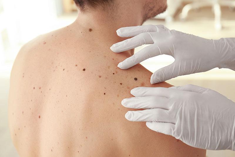 Früherkennung und Diagnostik von Hautkrebs durch Dr. Ponholzer