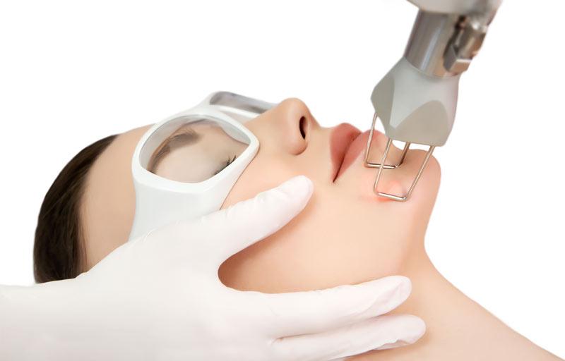 Gesichtsbehandlung durch einen Laser. Patientin trägt Schutzbrille und der Arzt macht eine Gesichtsbehandlung