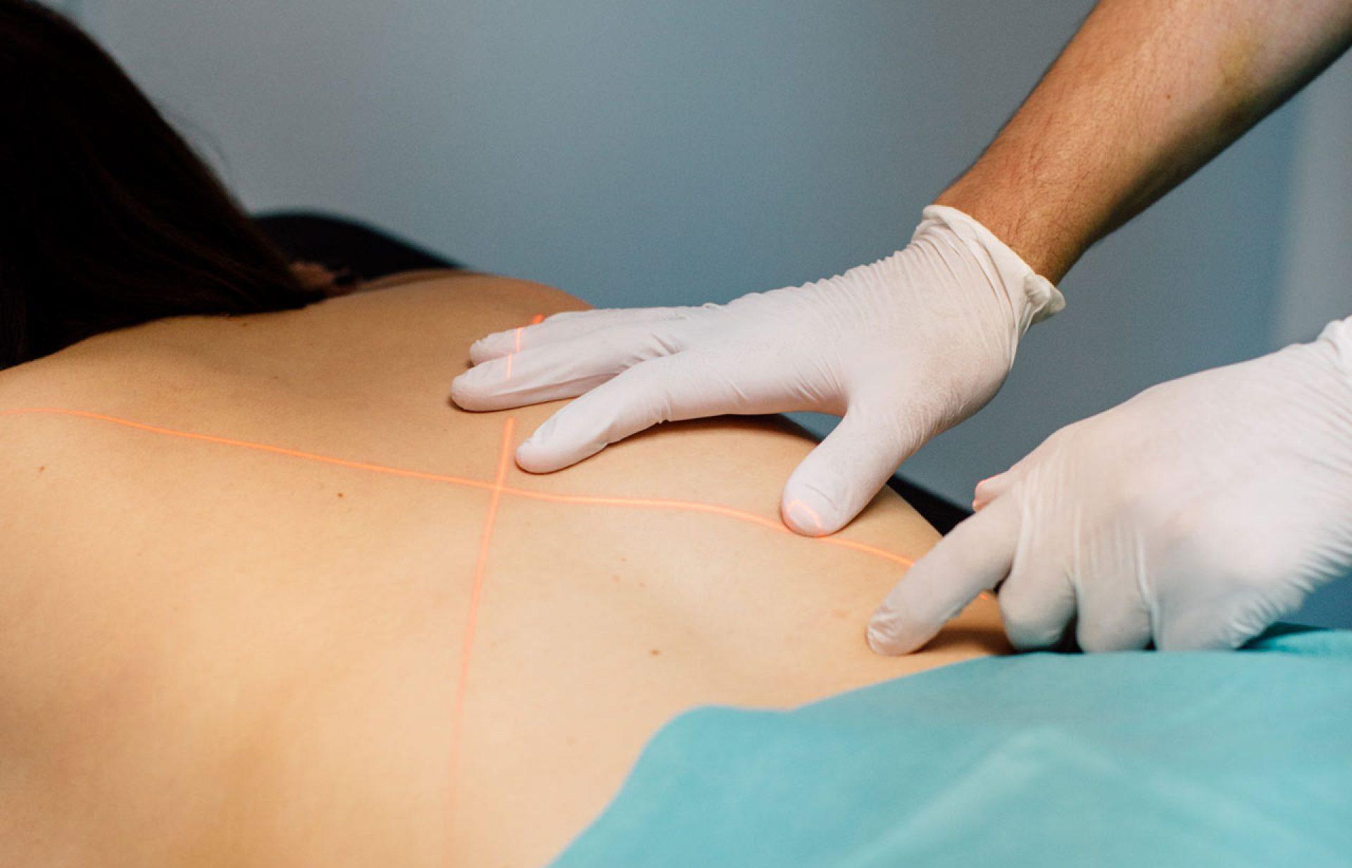 Transforaminal-epidurale Infiltration im zentrum für intreventionelle schmerztherapie, medsyn