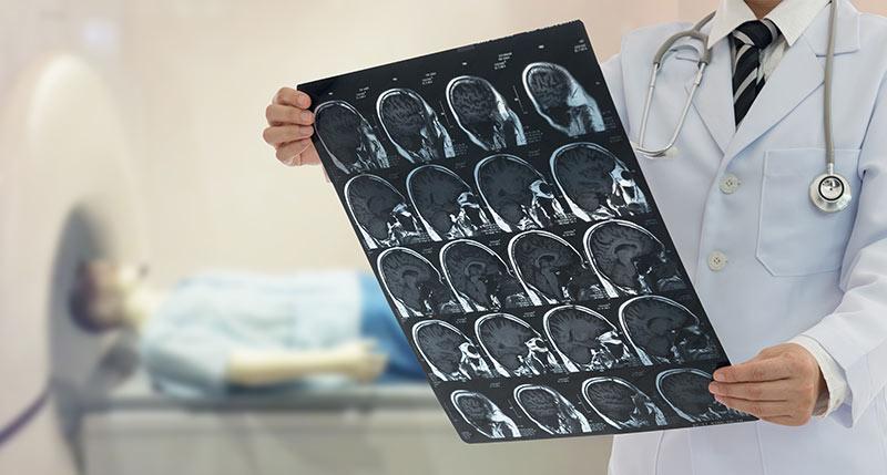Epilepsie erkennen und wirkungsvoll behandeln