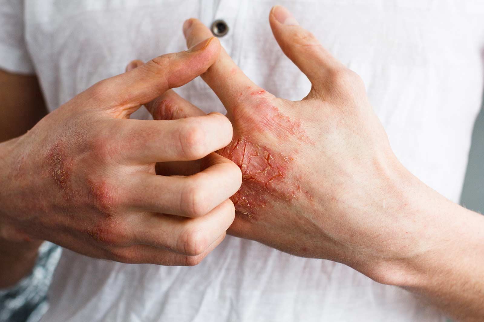 Schuppenflechte wirksam behandeln, Psoriasis